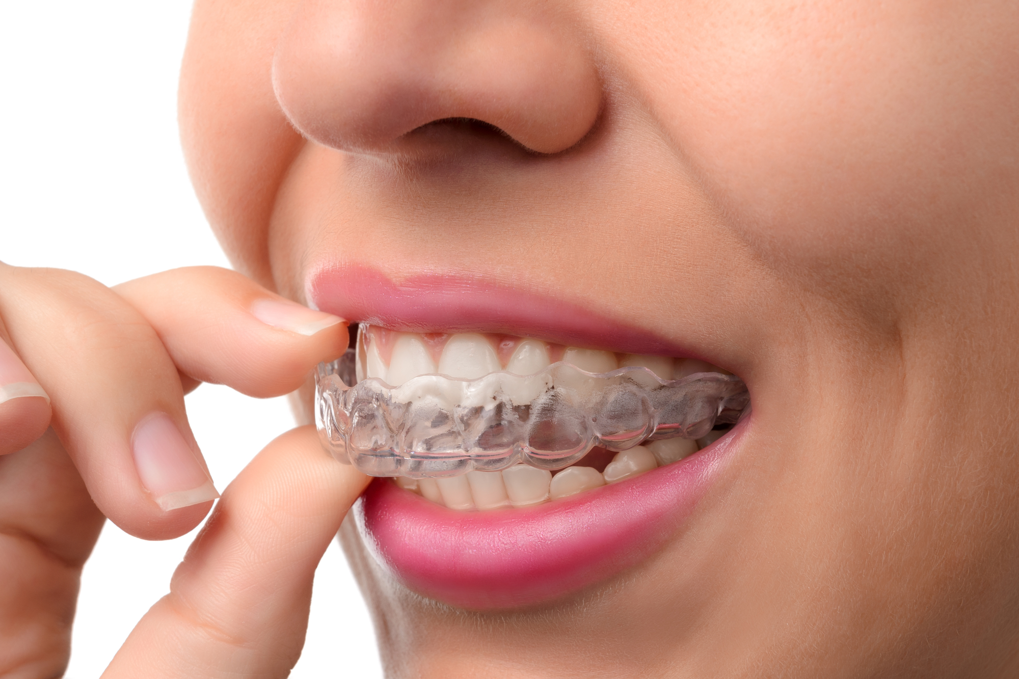 Where can I get Invisalign in Orlando?