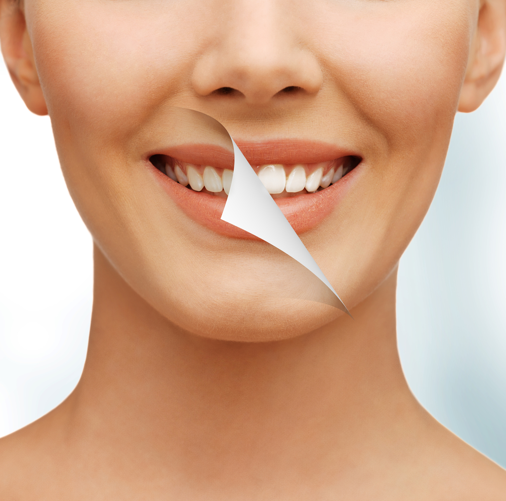 Where can I find a cosmetic dentist in Orlando?