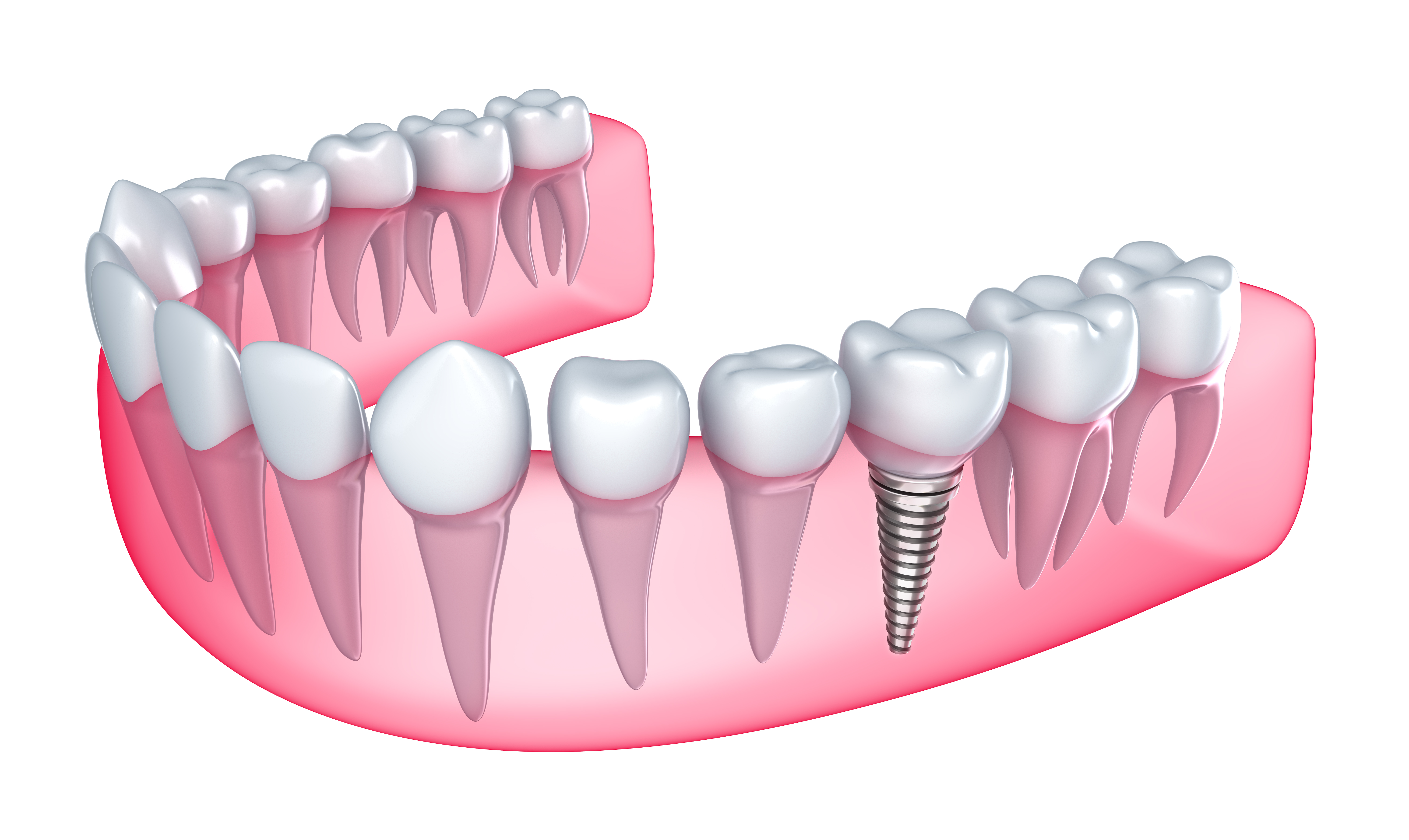 Where can I find dental implants in Orlando?