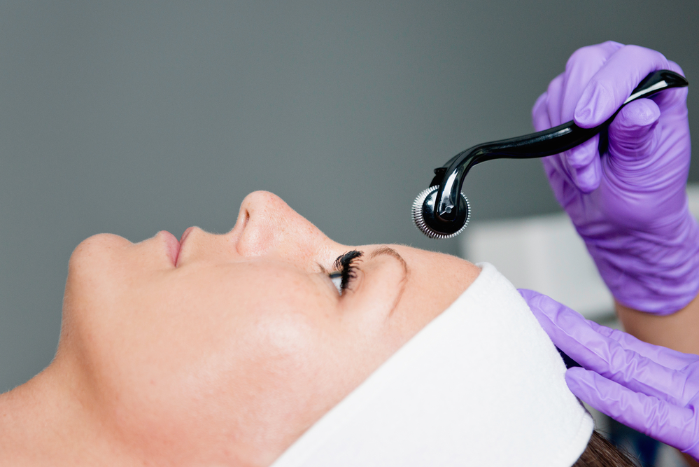 how can i get great microneedling in orlando for my skin?