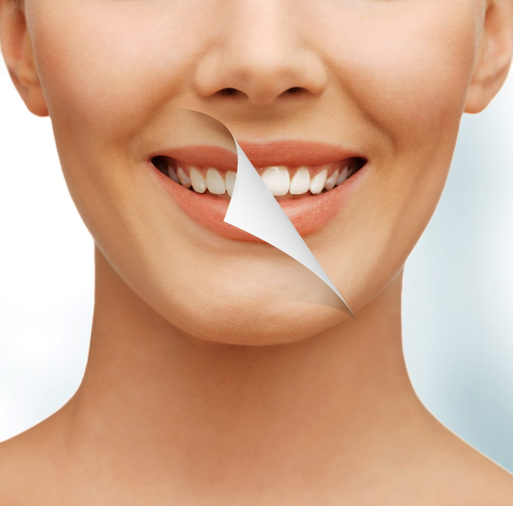 who can help me get porcealin veneers for my cosmetic dentist in orlando fl?