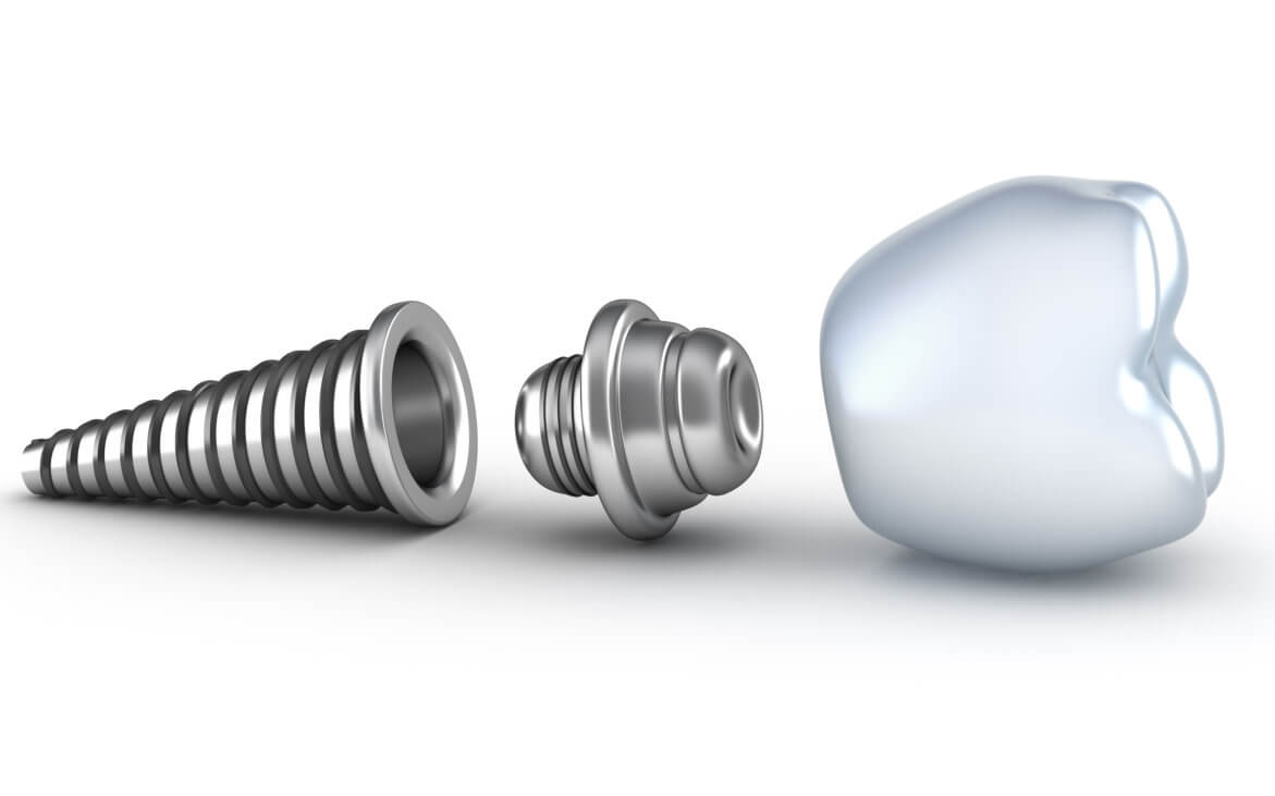 Who offers the best dental implants Orlando?