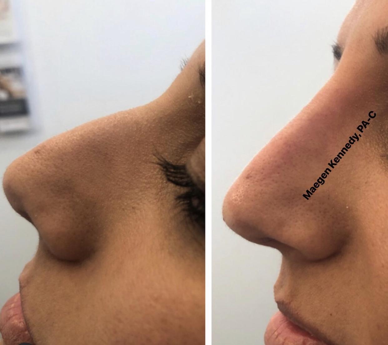 non-surgical-rhinoplasty-orlando-florida
