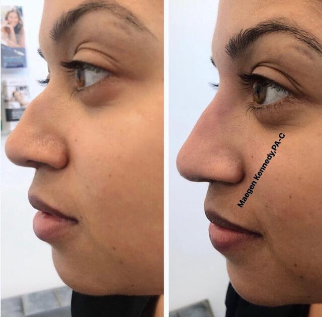 non-surgical nose job orlando, fl