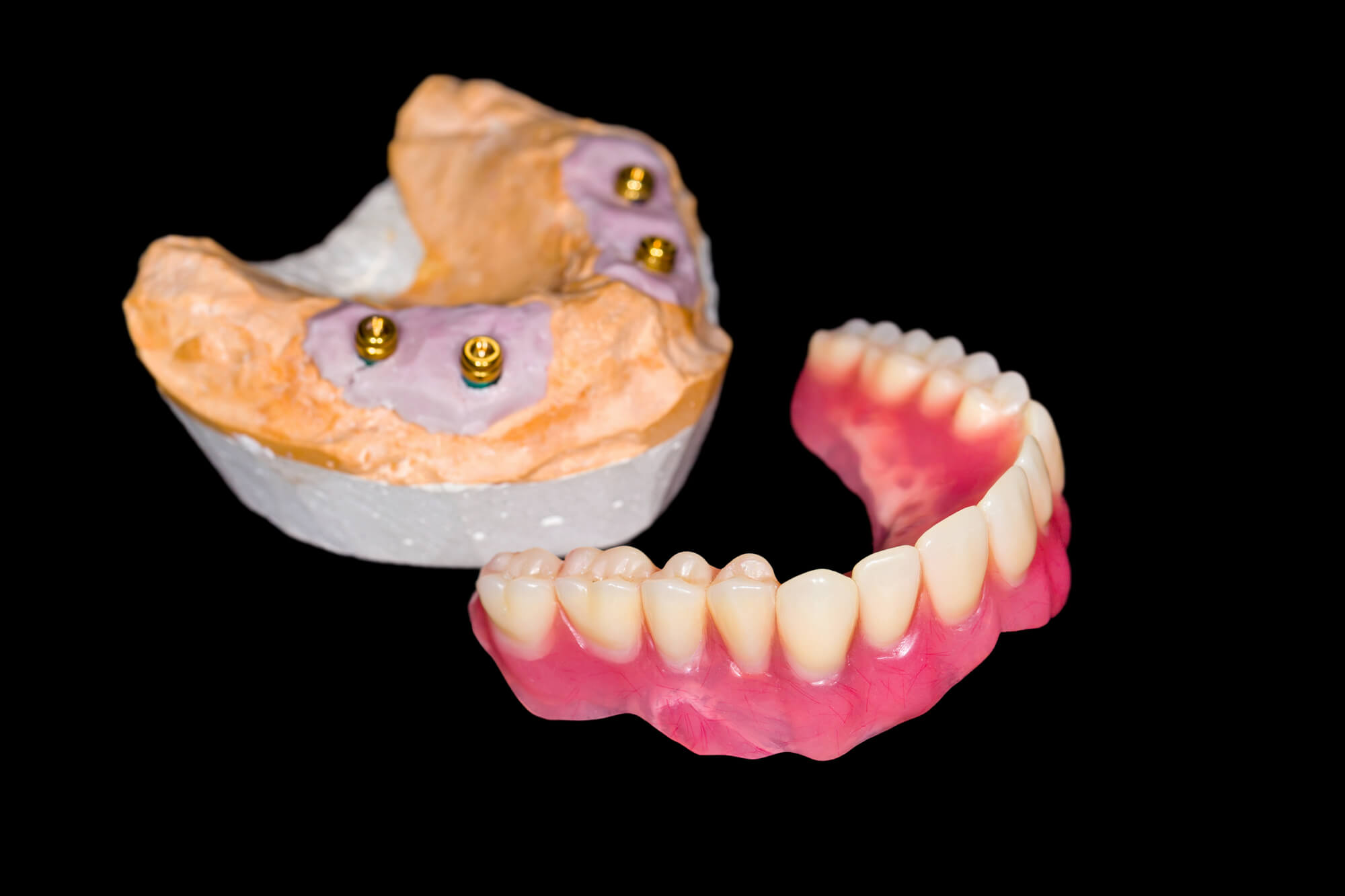 who offers the best dentures windermere?