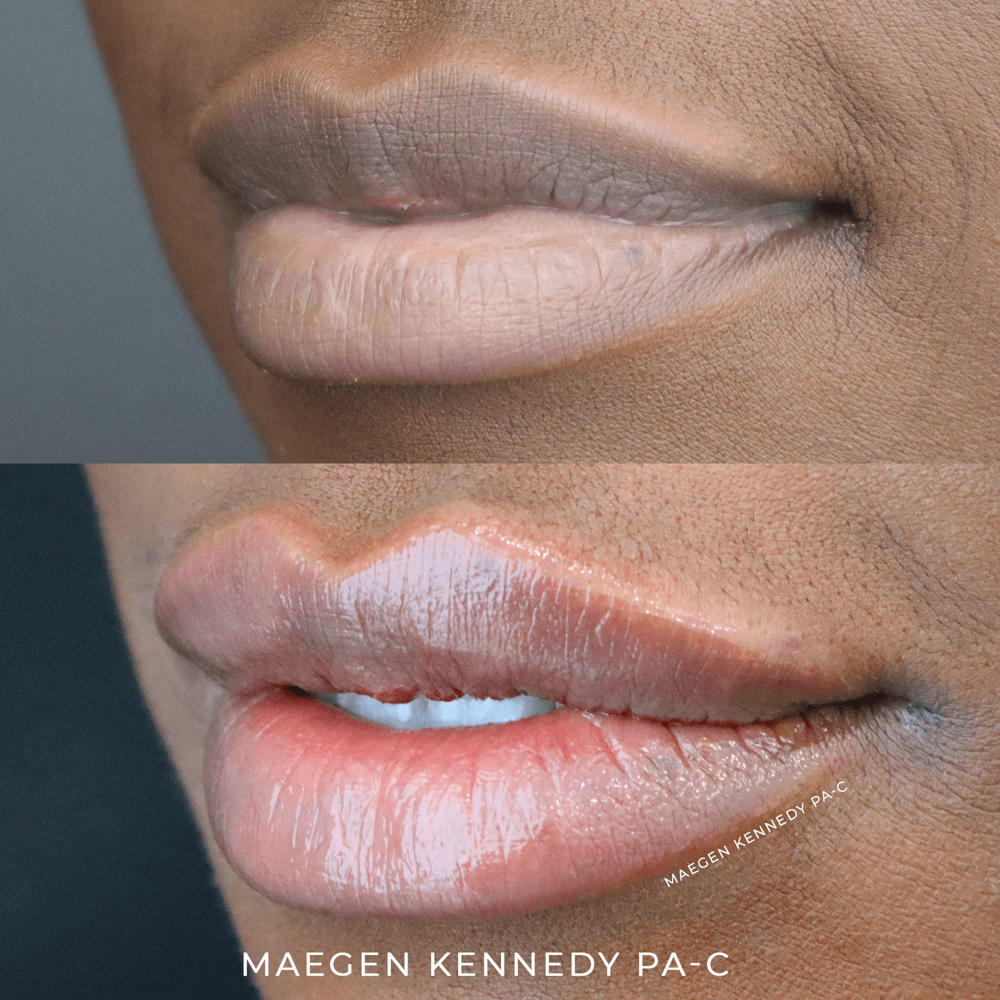 MK Pout Restylane Kysse - PA Maegen Kennedy Orlando, FL