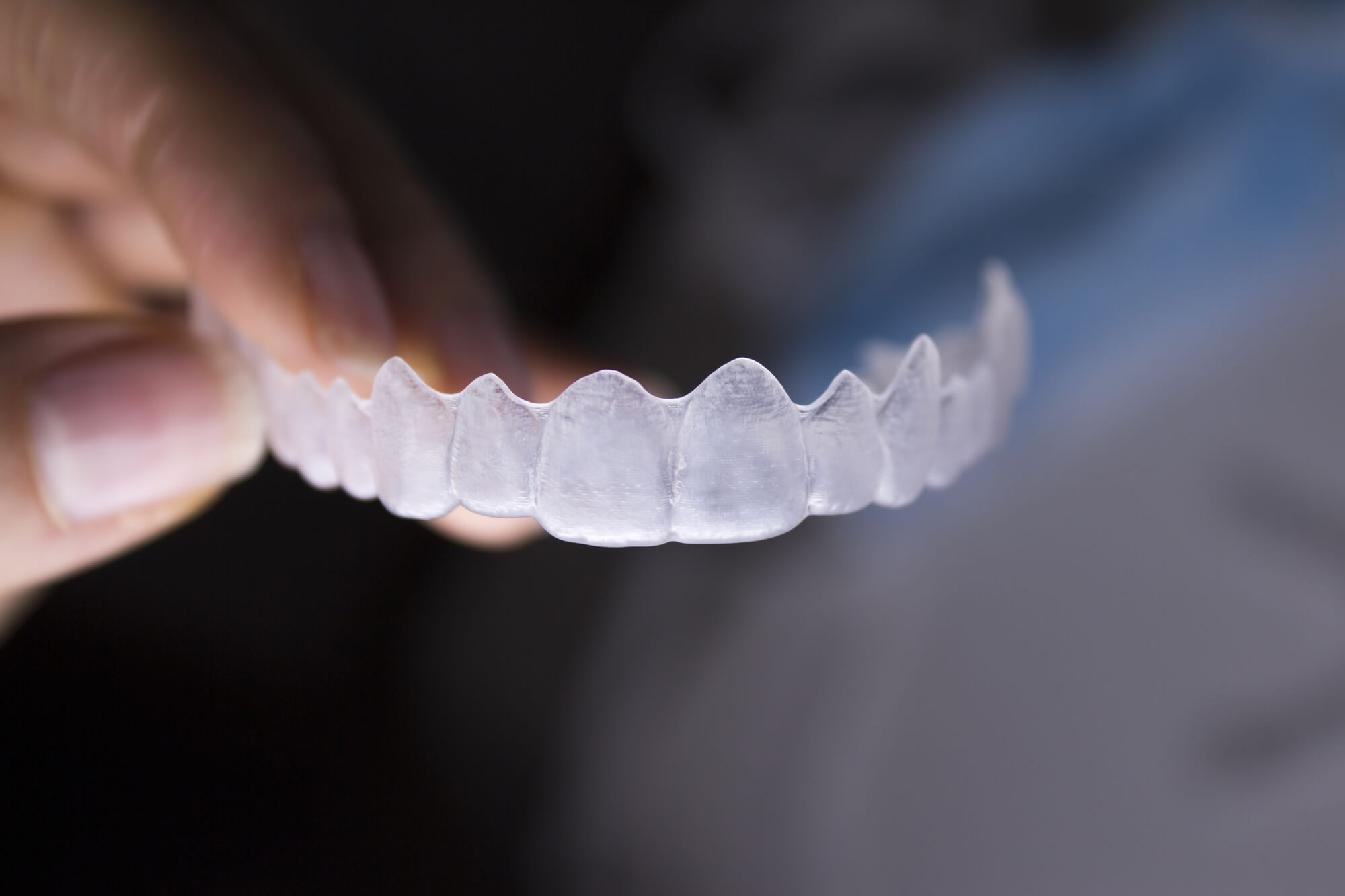 who offers the best invisalign orlando?