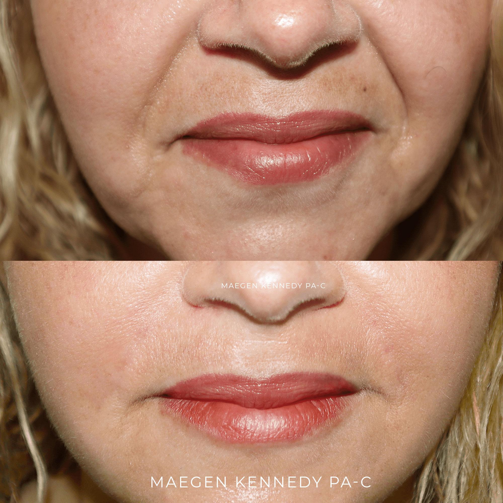 Nasolabial Folds - PA Maegen Kennedy Orlando, FL