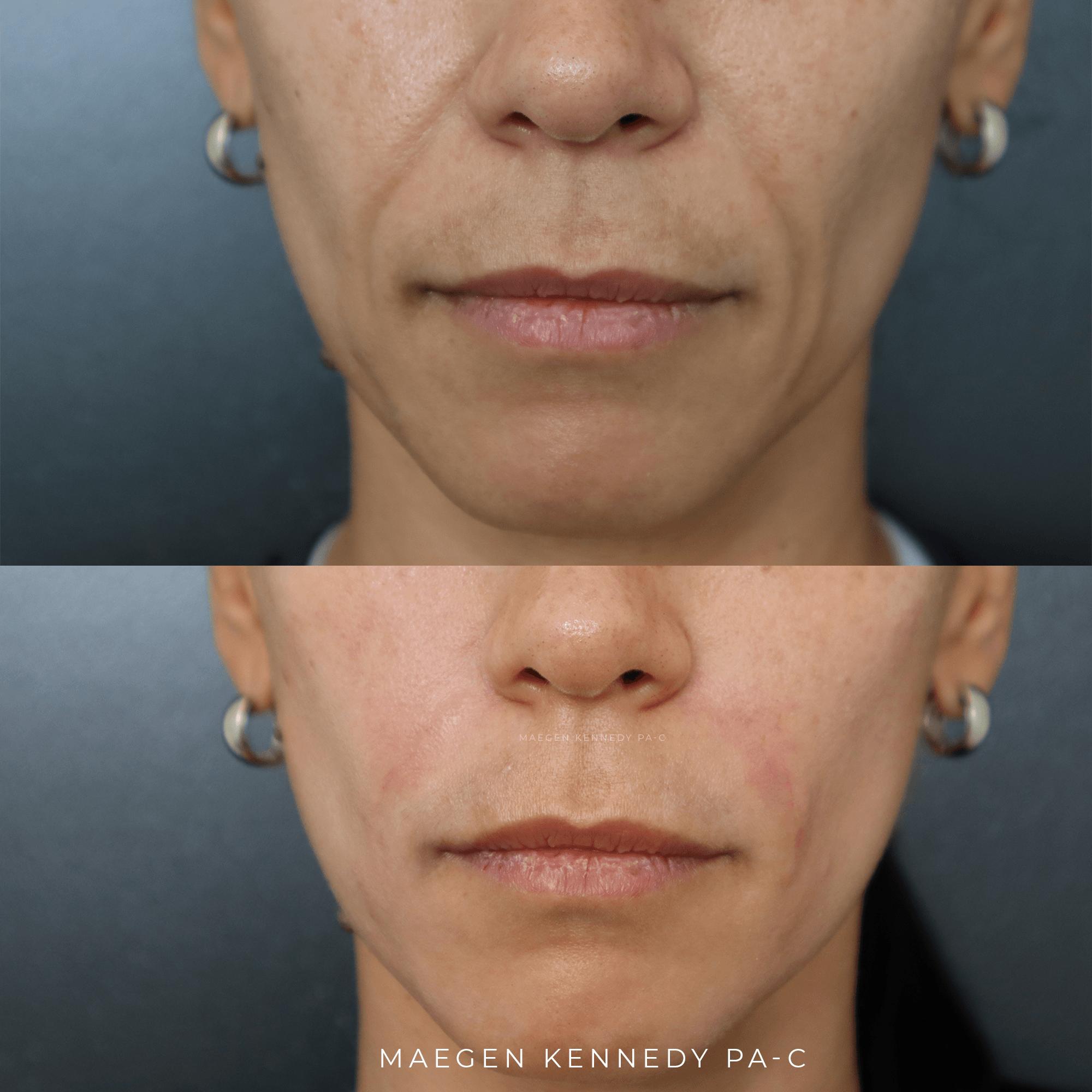 Smile Line Filler - Nasolabial Folds - Orlando, FL
