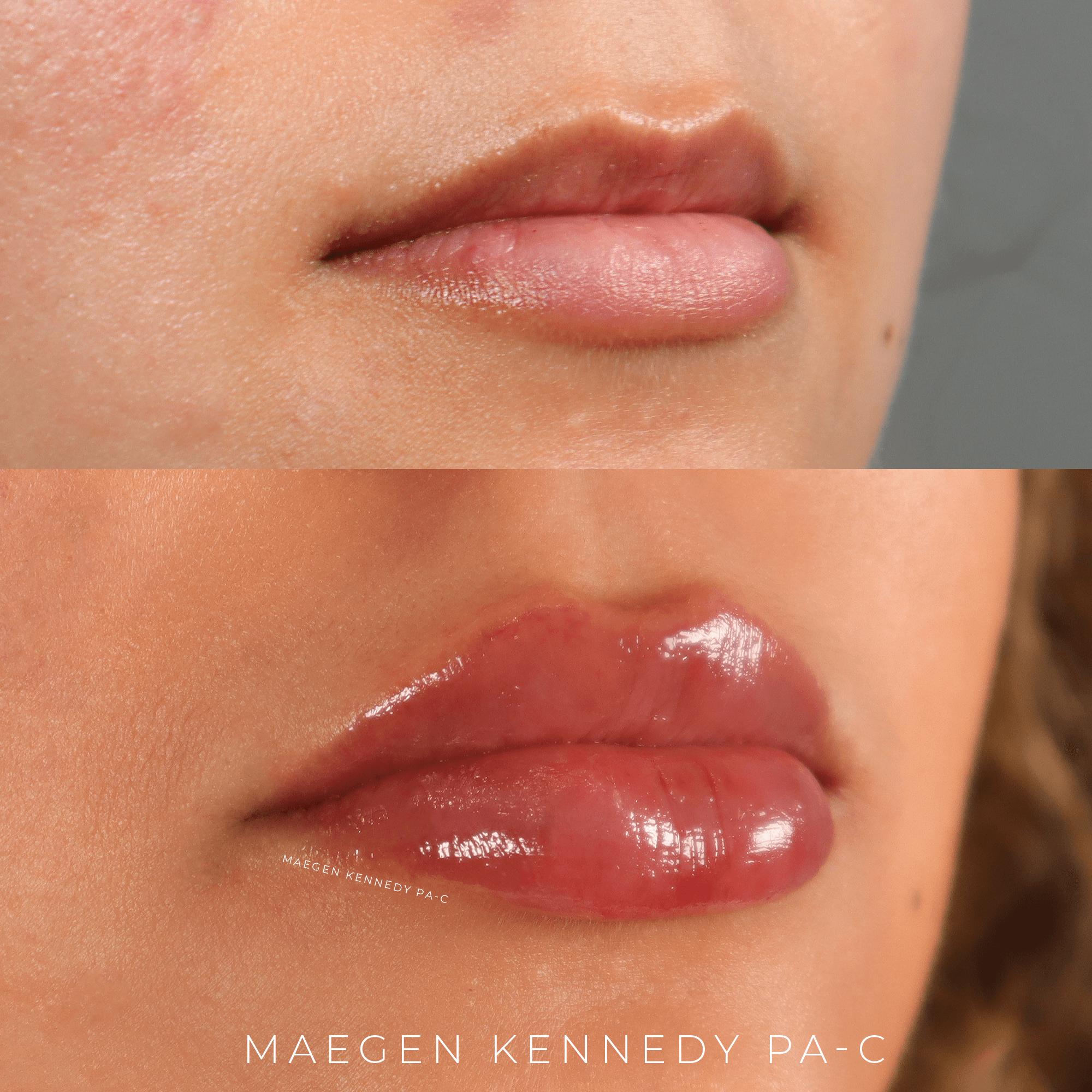 best lip injections orlando fl